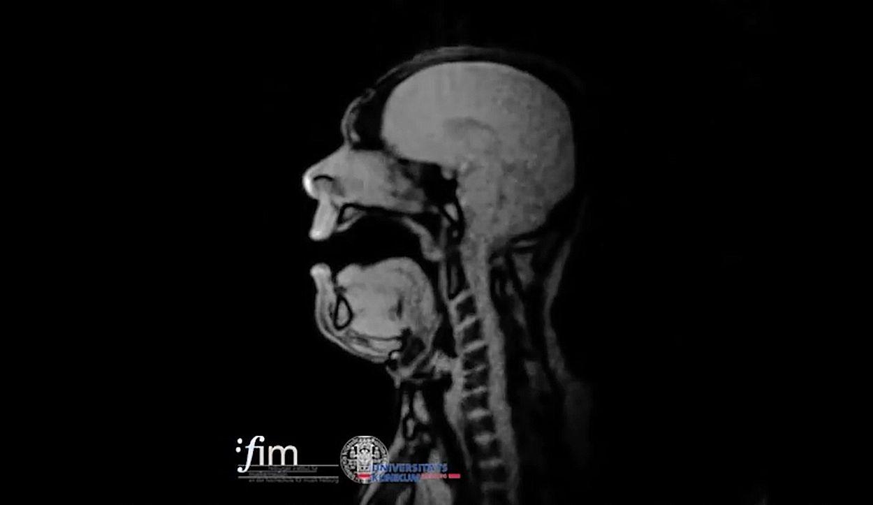 Afbeelding van Web Draait Door: Opera zingen in een MRI-scan